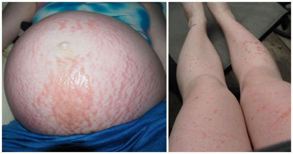 Severe itching during pregnancy not pupp