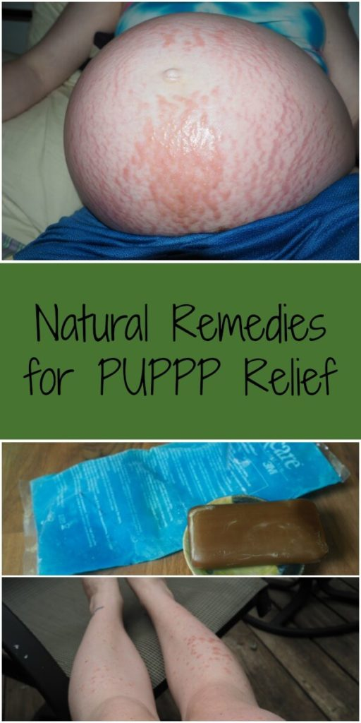 Natural Remedies for PUPPP Relief